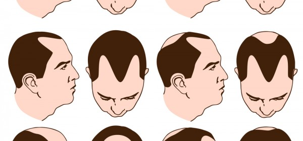 Is There A Male Pattern Baldness Cure